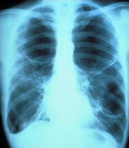 Human chest x ray showing the two lungs.