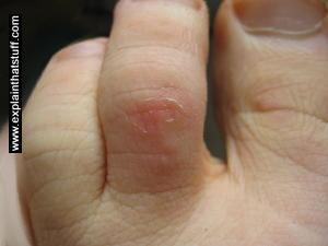 The nicely repaired skin on a toe after a compeed blister plaster has been removed