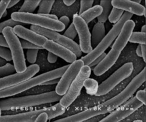 e-coli under an electron microscope