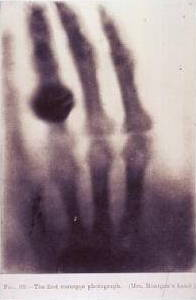 First Röntgen x ray photograph of a hand.