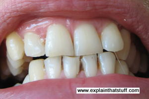 Gritted teeth seen from the front.
