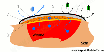 How the different layers of a hydrocolloidal dressing repel dirt and water, absorb moisture, and allow a wound to heal.