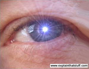 How Does Laser Eye Surgery Work?  Explain That Stuff. Nursing Homes In Des Moines Ia. Corporate Aviation News Voice Picking Systems. Cable Companies In Minnesota. Online Virtual Servers At&t Business Accounts. Online Colleges In Jacksonville Fl. Clarity Project Management Tool. Property Insurance Calculator. Ford Dark Side Metallic Look At Homes For Sale