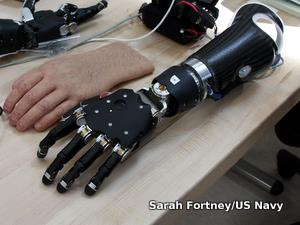 Brain-controlled prosthetic hand pictured with its realistic cosmetic skin covering alongside.