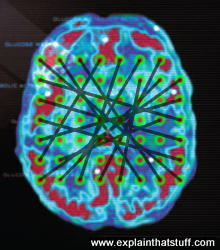 General illustration of a neural network: a brain scan photo overlaid with dots to represent connected neural units.