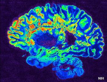 MRI brain scan side view