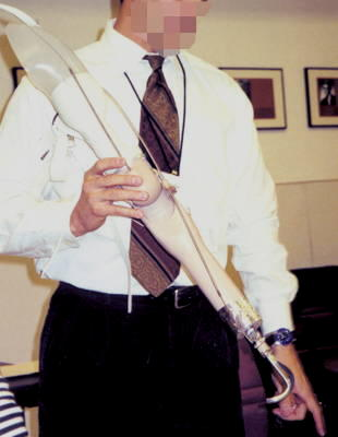 A prosthetist demonstrates a simple prosthetic arm.