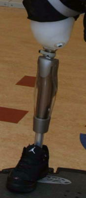 A typical prosthetic leg.