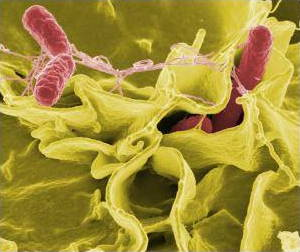 Salmonella under an electron microscope